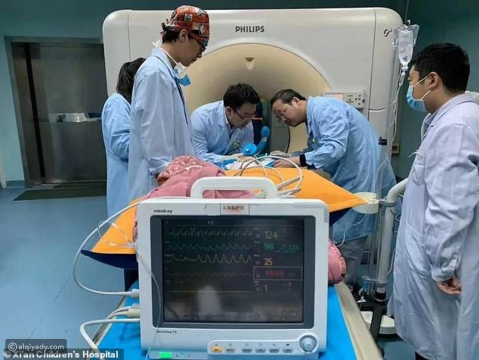شاهد: أطباء ينقذون طفلاً اخترق عينه مسماراً ووصل إلى الجمجمة